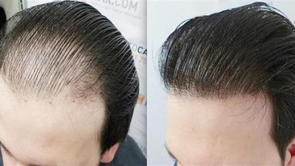 بعد زراعة الشعر